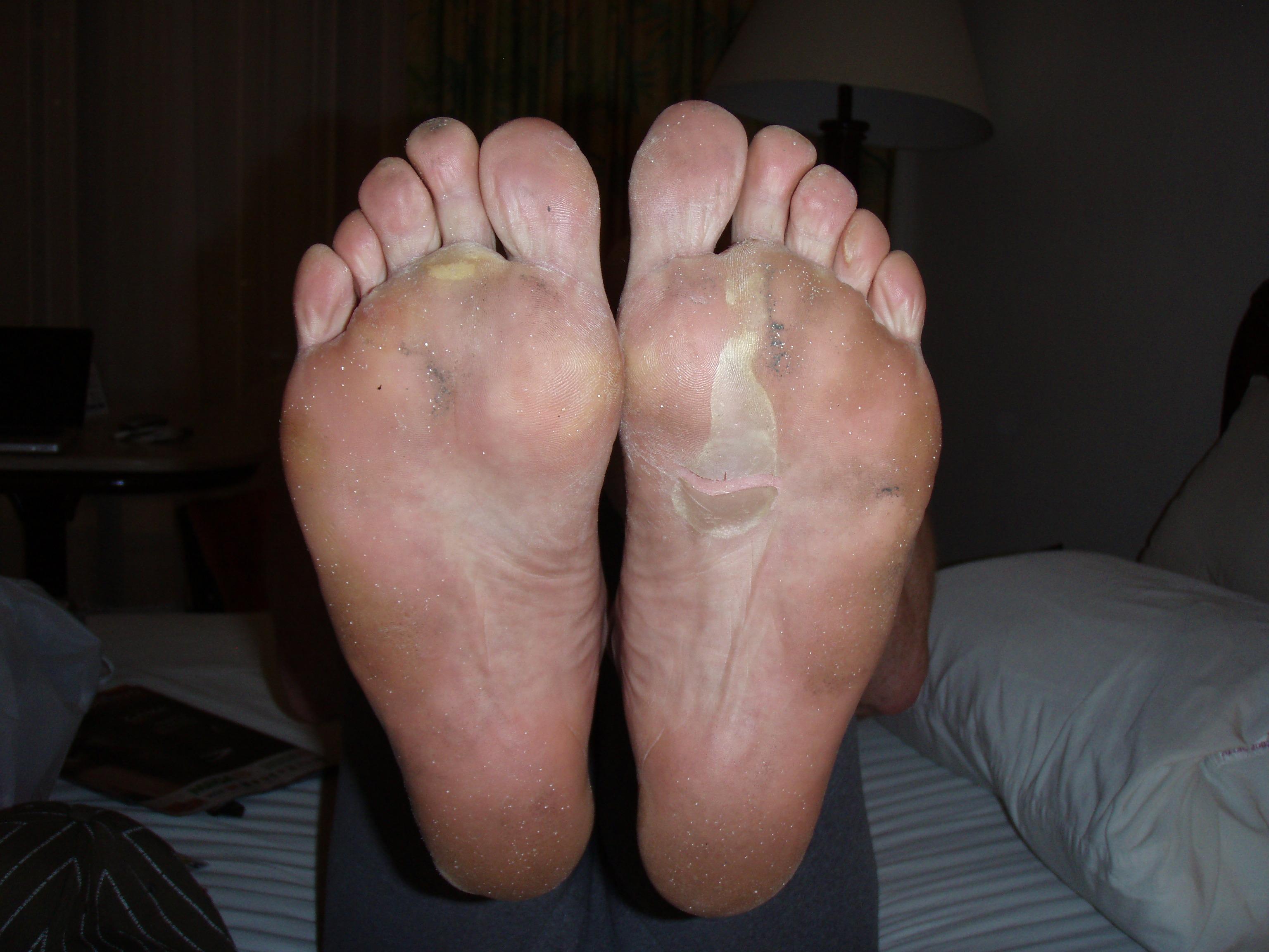 senebetændelse i foden